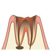 虫歯の状態の種類