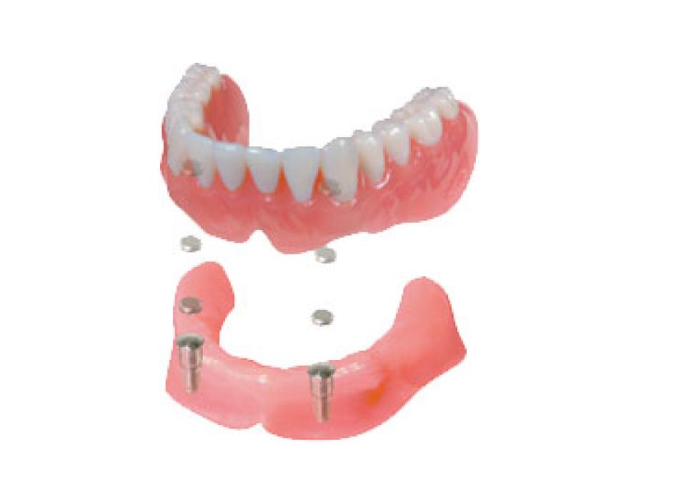 入れ歯で、川口で安心できる歯医者さんを目指しています