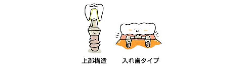 インプラントで、川口で安心できる歯医者さんを目指しています
