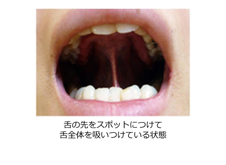 小児矯正で、川口で安心できる歯医者さんを目指しています